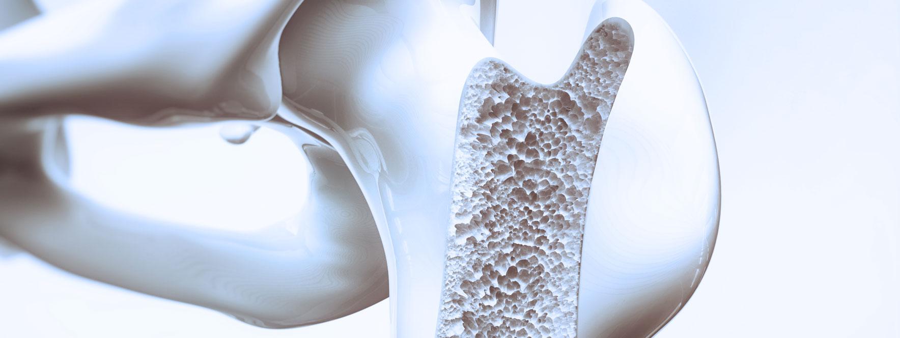L'ostéoporose - Blogue du Réseau des massothérapeutes