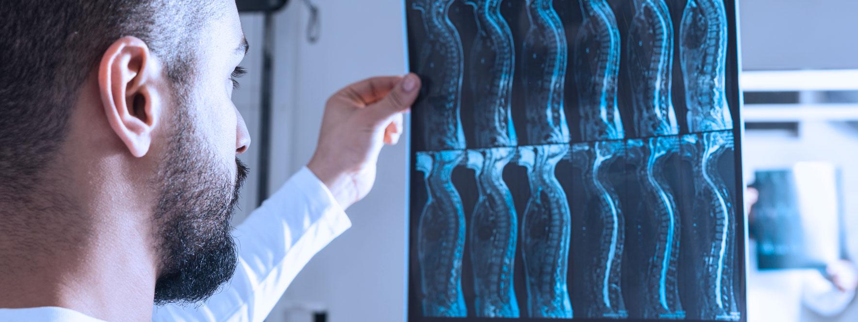 La radiographie et l'IRM ne sont pas souvent très informatives | Réseau des massothérapeutes