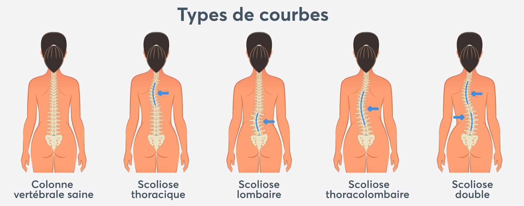 Types de courbes scoliose | Réseau des massothérapeutes
