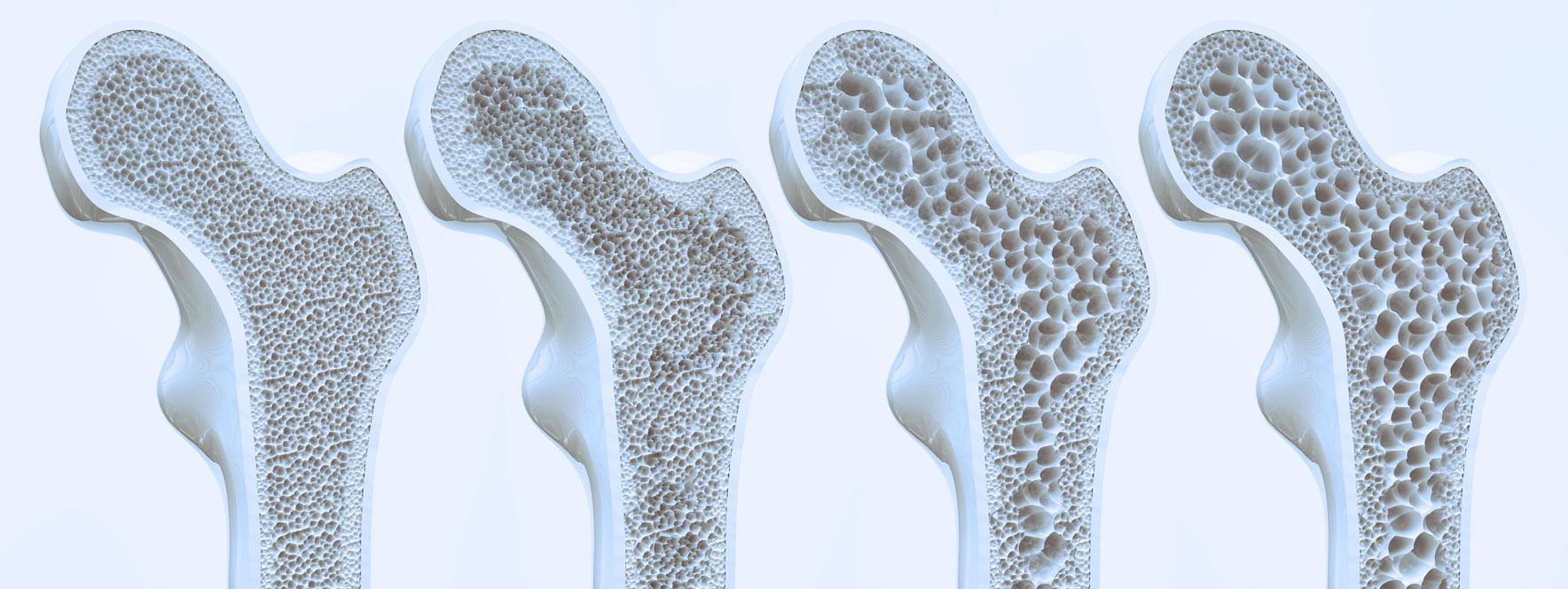 Le massage pour soulager les maux de l'ostéoporose Blogue du Réseau