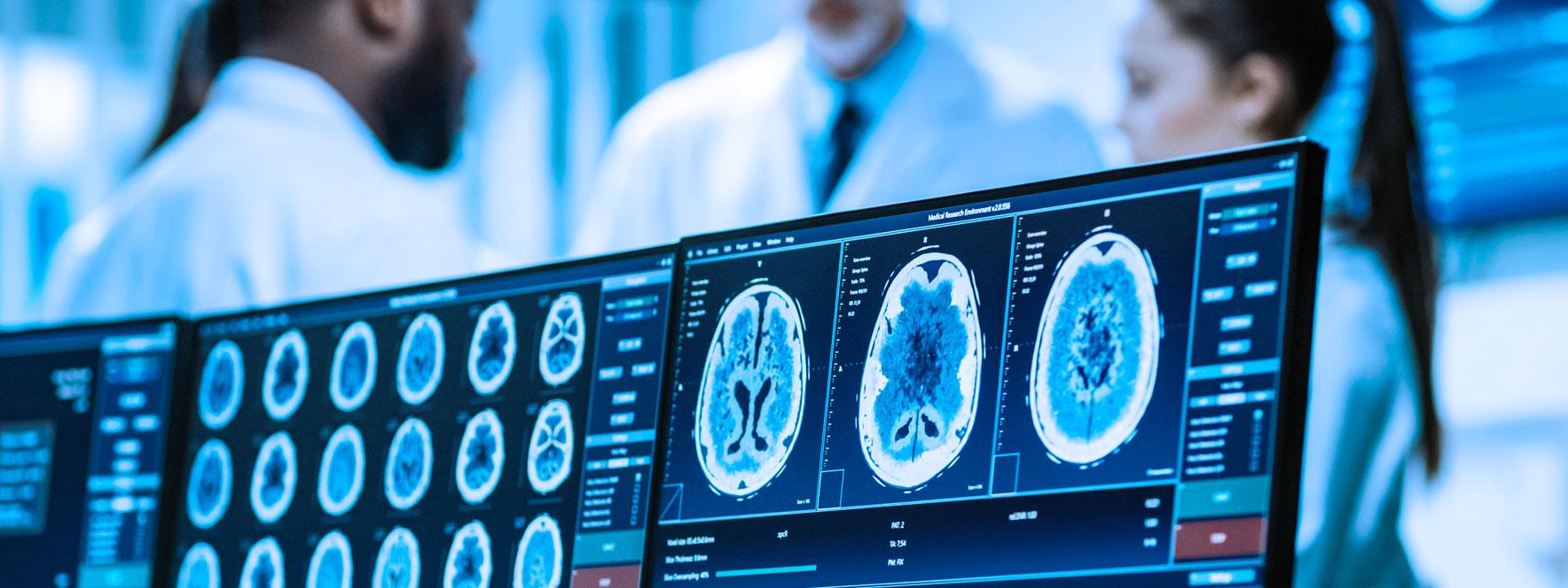 Écran IRM de recherche et essais clinique sur la maladie du Parkinson